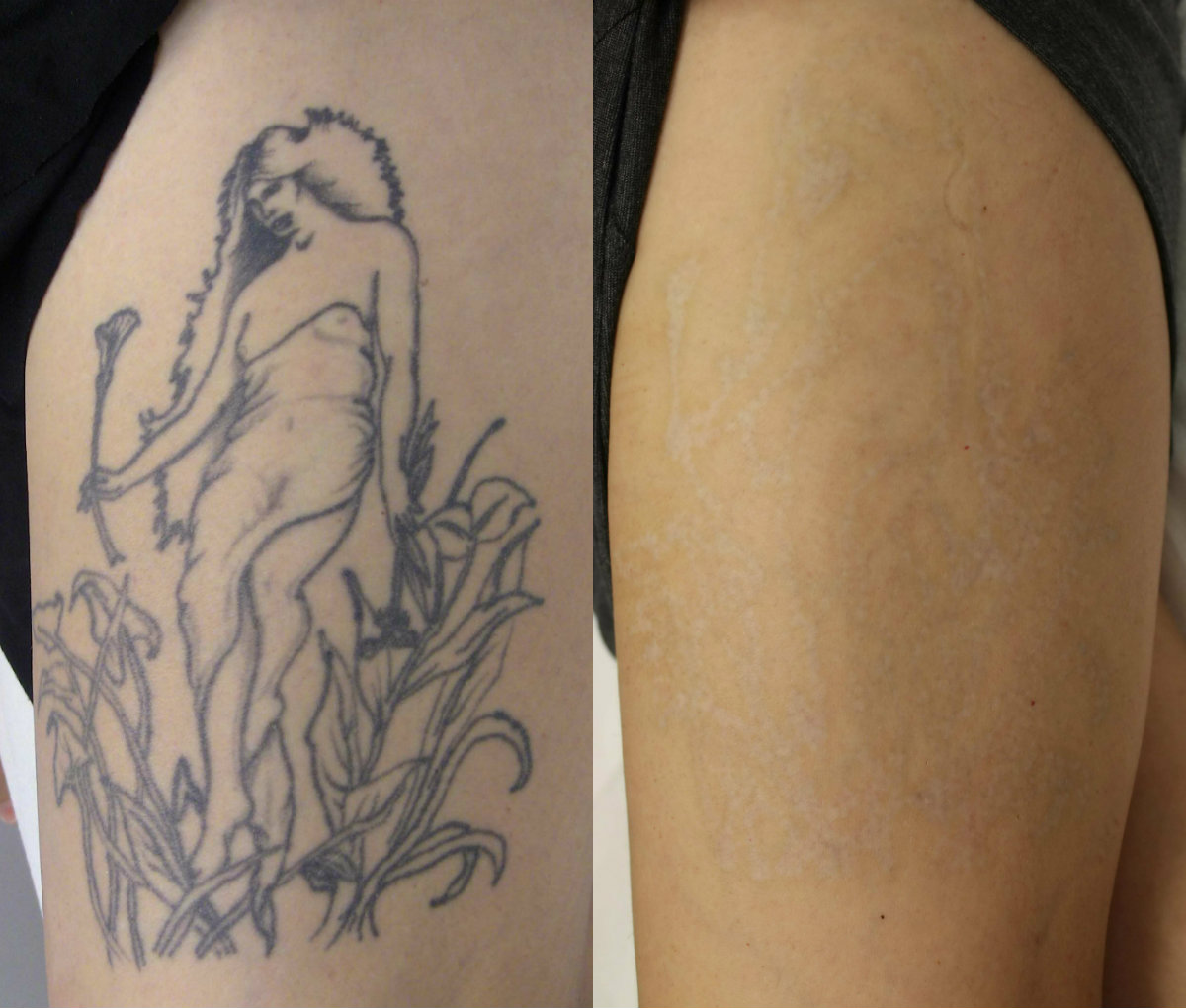 Laser tattoo removal is a medical procedure that deserves research and
